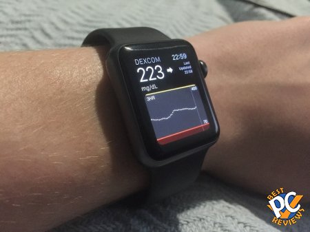 Dexcom G5 on Apple Watch